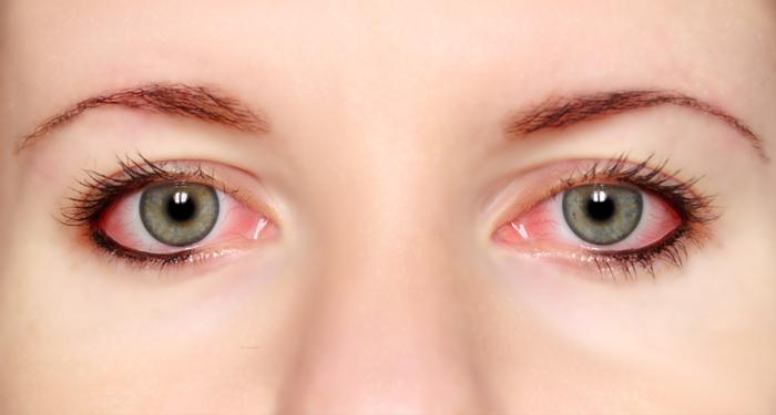 """Résultat de recherche d'images pour """"Eye Problems"""""""