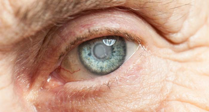 Cataracts: Not the end of the world
