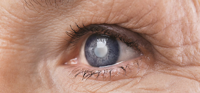 Cataracts - The main cause of impaired vision worldwide