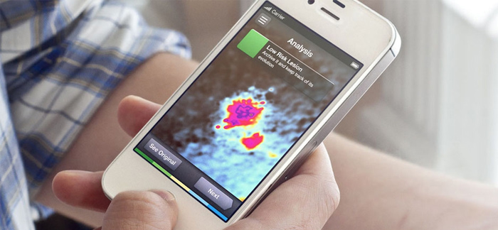 Can Your Smartphone Be Used To Detect Skin Cancer